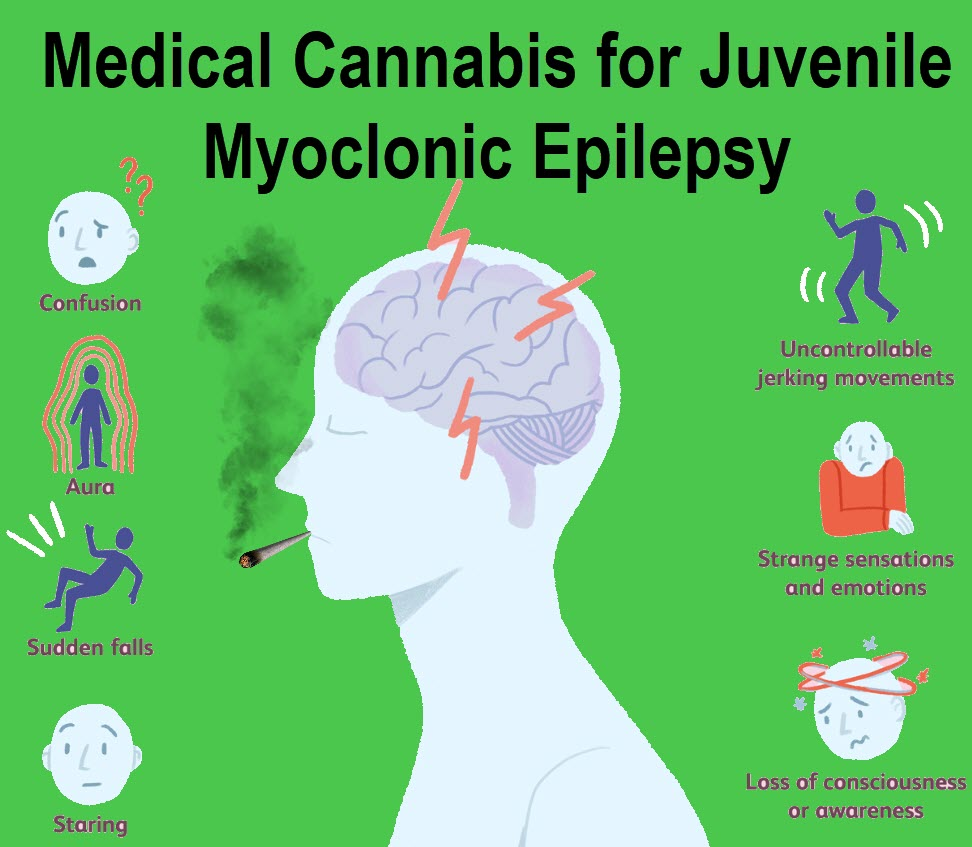 CANNABIS FOR EPILESPY