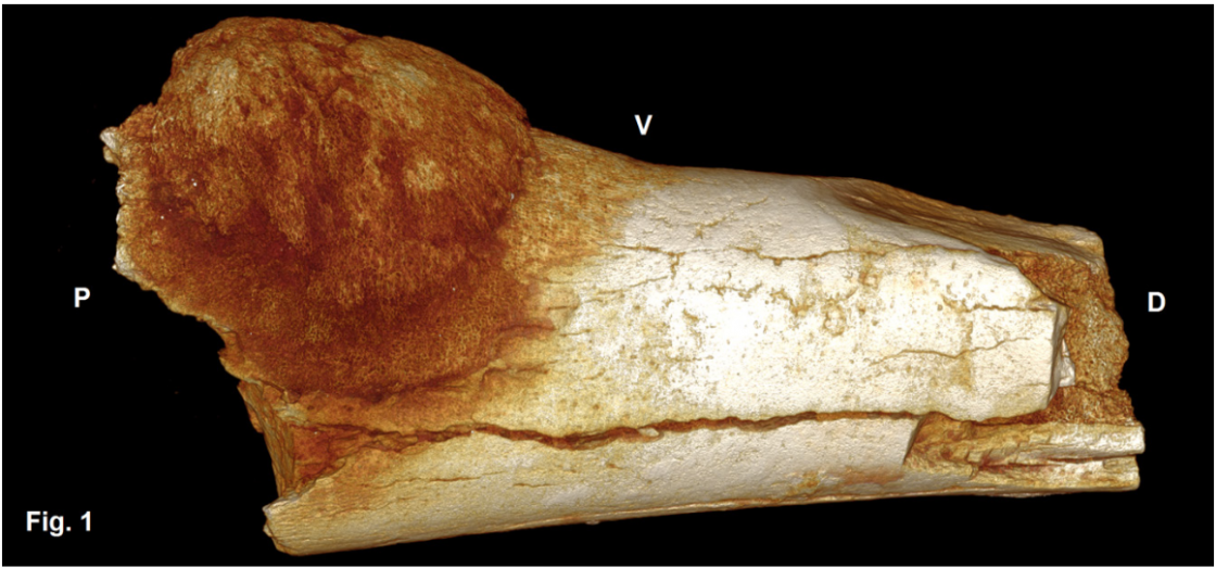 Osteosarcoma of the 5th metatarsal of a hominin