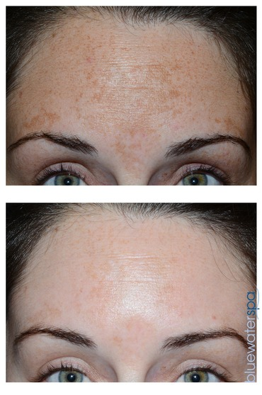 Facial treatments at Blue Water Spa