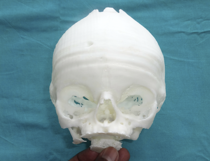 3D Printing Medical Industry.png