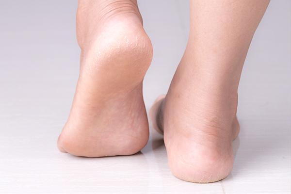 Få massa inspiration till hur du kan ta hand om dina fötter här!