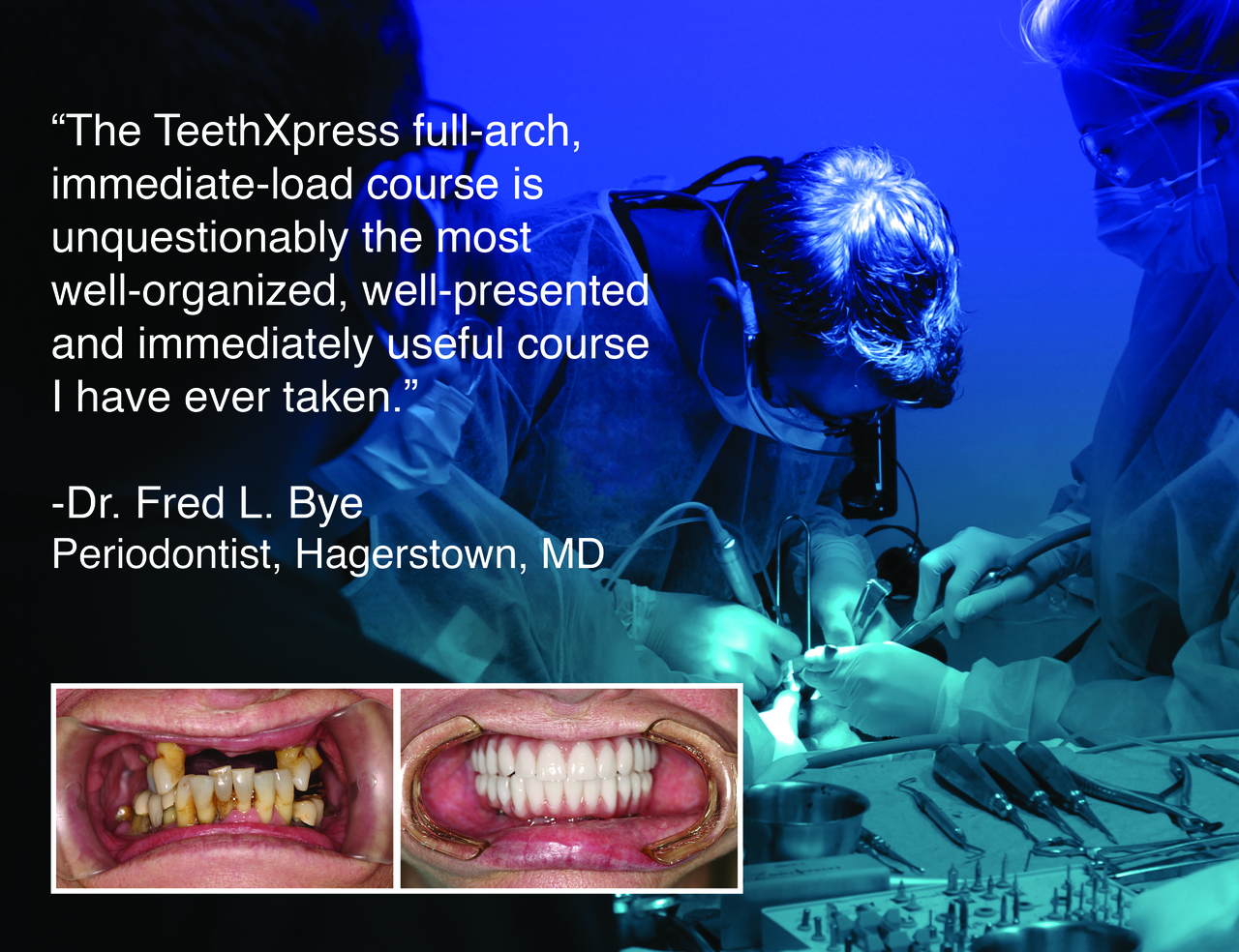 """The TeethXpress full-arch, immediate-load course is unquestionably the most well-organized, well-presented and immediately useful course I have ever taken."""
